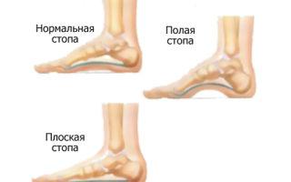 Боль в своде стопы