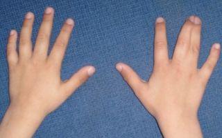 Синдактилия пальцев
