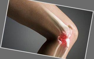 Шишка на колене — при каких заболеваниях появляется, способы лечения
