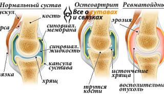Основные причины боли в суставах