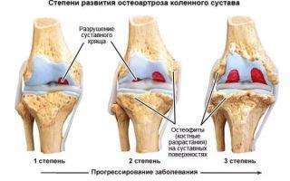Симптомы остеоартроза тазобедренного сустава