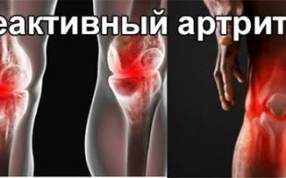 Как лечить реактивный артрит: симптомы, причины, диагностика