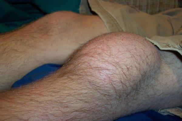 Воспаленное колена
