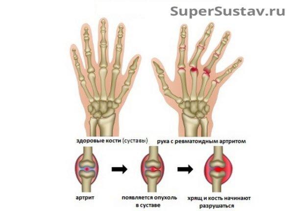 Возникновение артрита пальцев рук