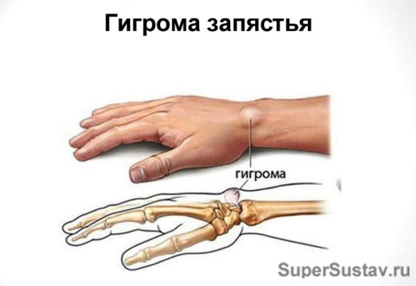 гигрома запястного сустава