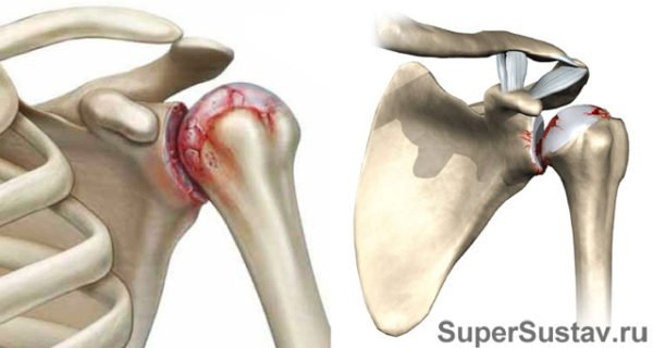 Какими препаратами лечить артроз плечевого сустава