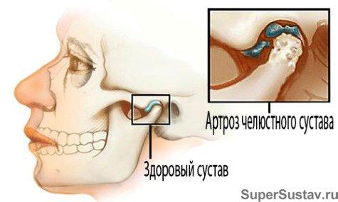 Артроз челюсти