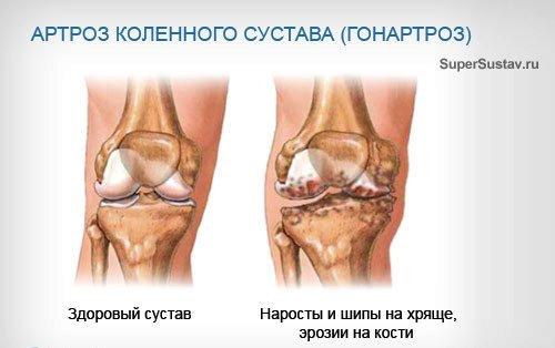 сравнения артроза коленного сустава