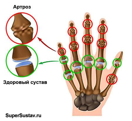 Артроз кисти руки: стадии, симптомы и лечение