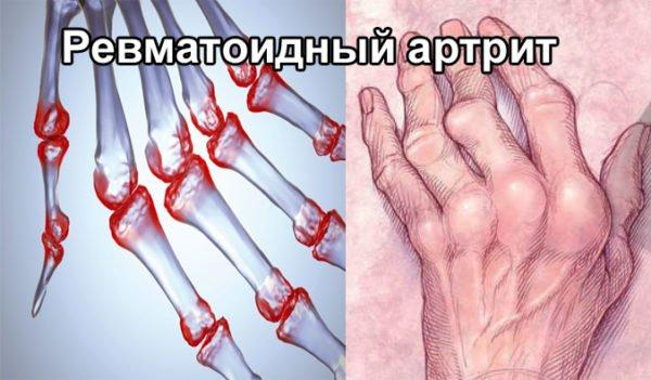 Ревматоидное заболевание суставов