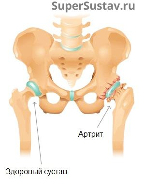 Лечение артрита тазобедренного сустава препараты