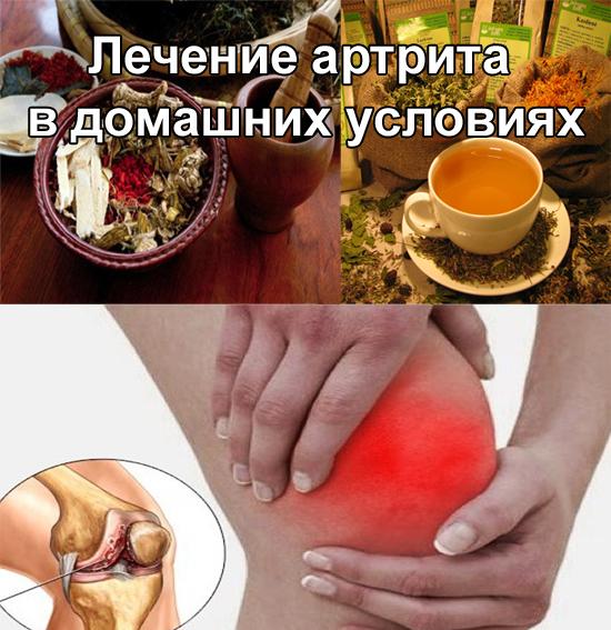 лечение артрита в домашних услових