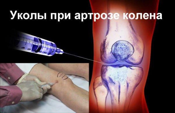 уколы в колено