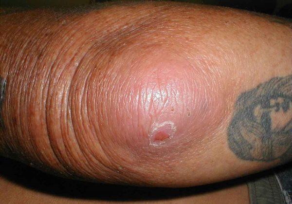 форма локтевого бурсита