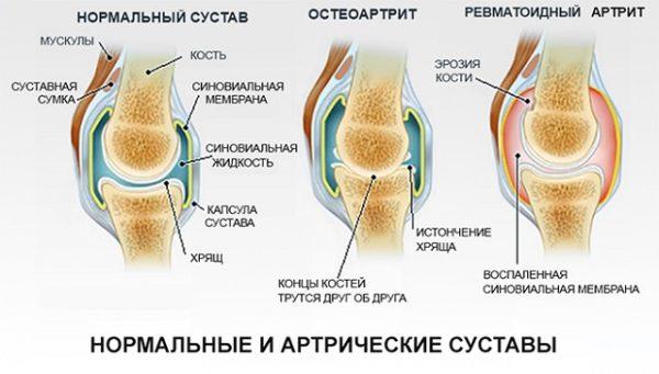 формы и виды артрита