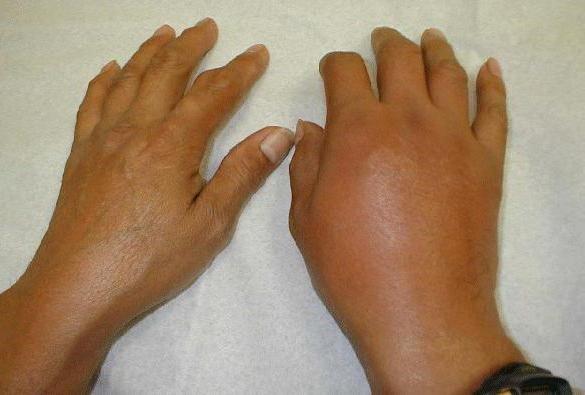 Разные руки