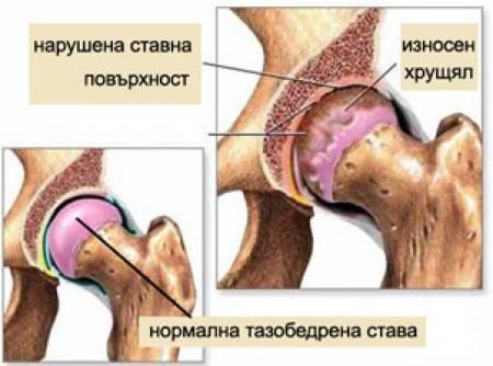 гнойный артрит таза