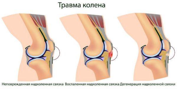 травма сустава