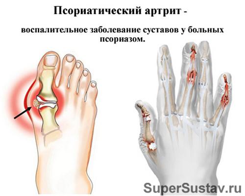 Влияние псориаза на кости при артрите