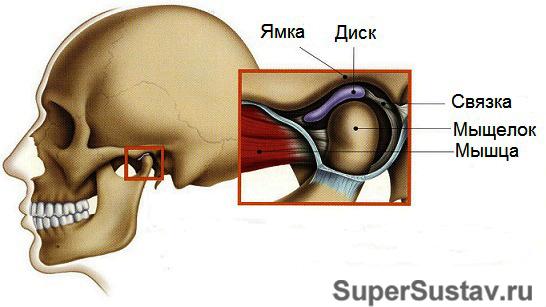 Как выглядит артрит внчс