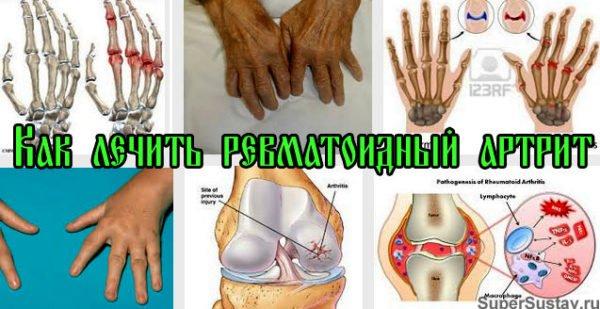 Как лечить ревматоидный артрит народными средствами