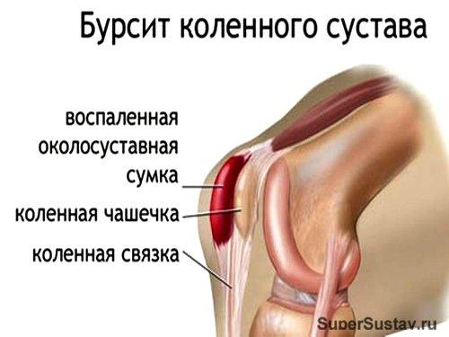 Бурсит коленного сустава в разрезе
