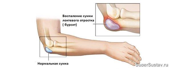 Бурсит локтевого сустава в разрезе