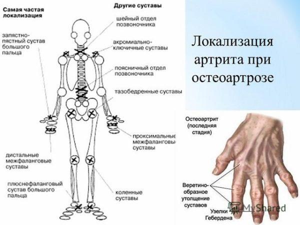 локализация артрита