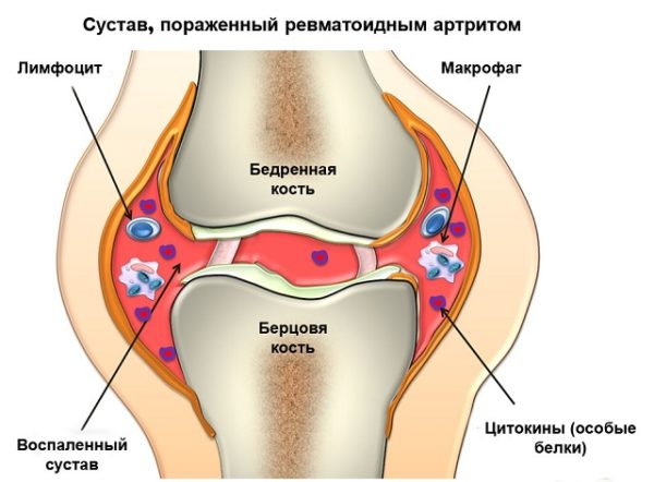 поражение суставных тканей