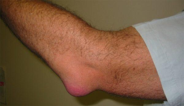 воспаление бурсита хронического