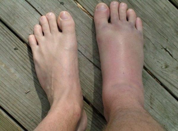 сильный оттек ноги