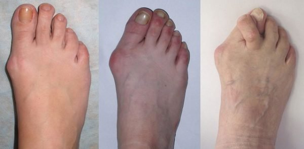 деформация пальцев ног