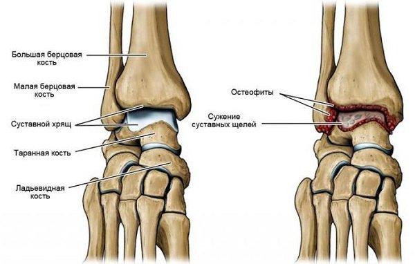 структура скелета ноги