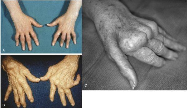 искривление руки