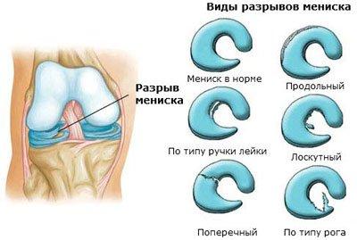 Боли в спине ногах и отёчность