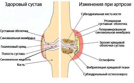 что происходит с больным коленным суставом