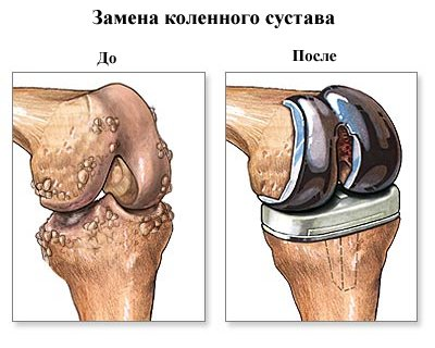 вид колена после замены