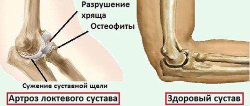 Сравнение со здоровой рукой