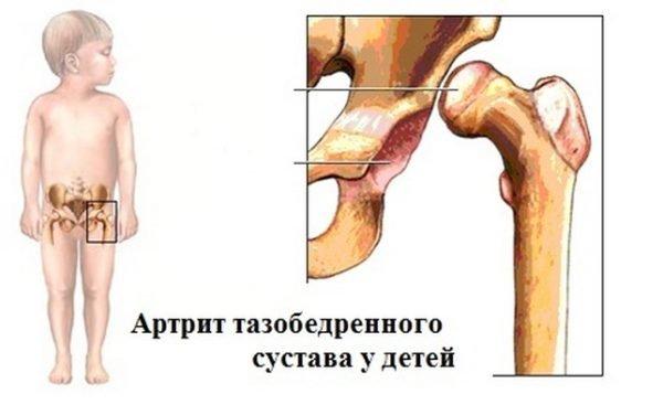 детский недуг