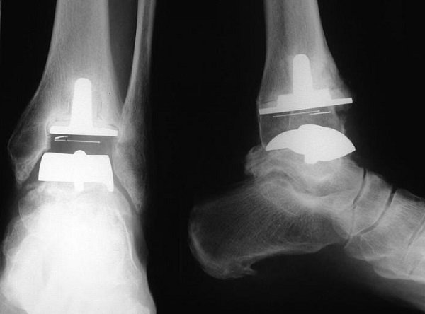 имплантация на рентгене