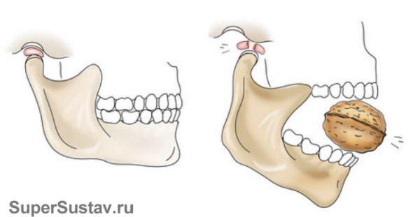 причина заболевания челюстного сустава