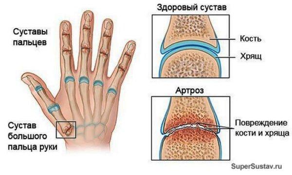 схема пальцев рук