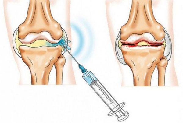 инъекция в сустав