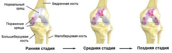 стадии развития артроза коленного сустава