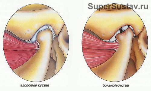 Признаки артрита височно челюстного сустава