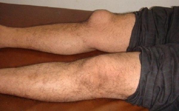 разница между ногами