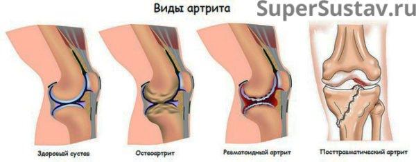 Популярные виды артрита суставов
