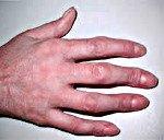 Болезни пальцев рук