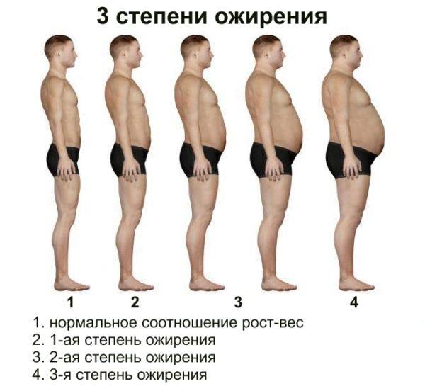 степпени ожирения