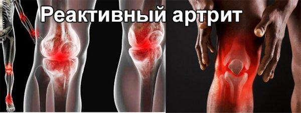 Реактивный артрит во всех суставах
